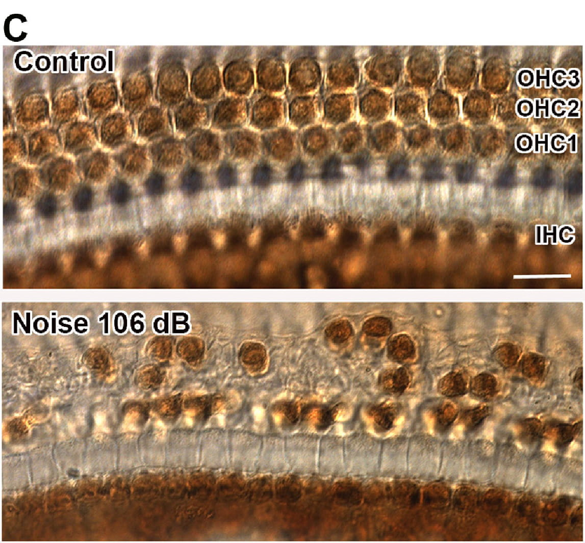 The representative images illustrate hair cell losses in the middle region (3 mm from apex) two weeks after exposure to 106 dB SPL 2–20 kHz BBN.