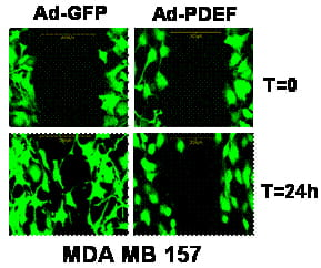 PDEF expression inhibits cell migration