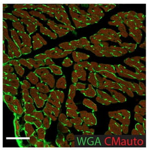 Wheat germ agglutinin staining of cardiomyocytes